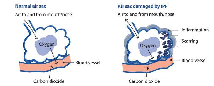 Lung IPF