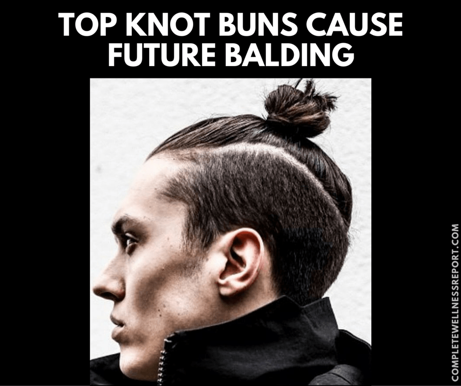 TOP KNOT BUNS EVENTUALLY CAUSE BALDING